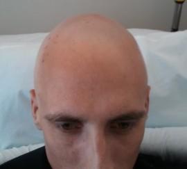 Bald Tyler